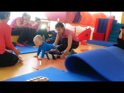 Koślawe kolana deformacja na zdjęciach dzieci