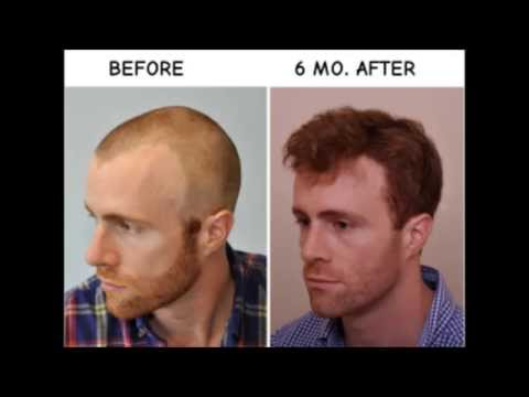BEFORE & AFTER Hair Transplant Using ARTAS Robot- 6 Months
