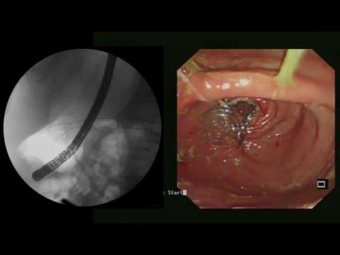 Virus del papiloma humano imagen
