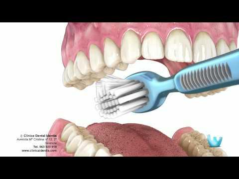 Higiene dental - Clinica identis