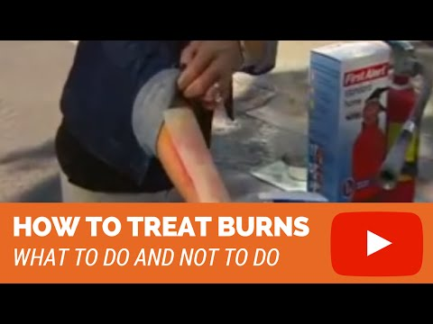 Video How To Treat Burns (2nd degree, 3rd degree burns)
