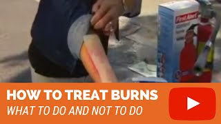 How To Treat Burns (2nd degree, 3rd degree burns)