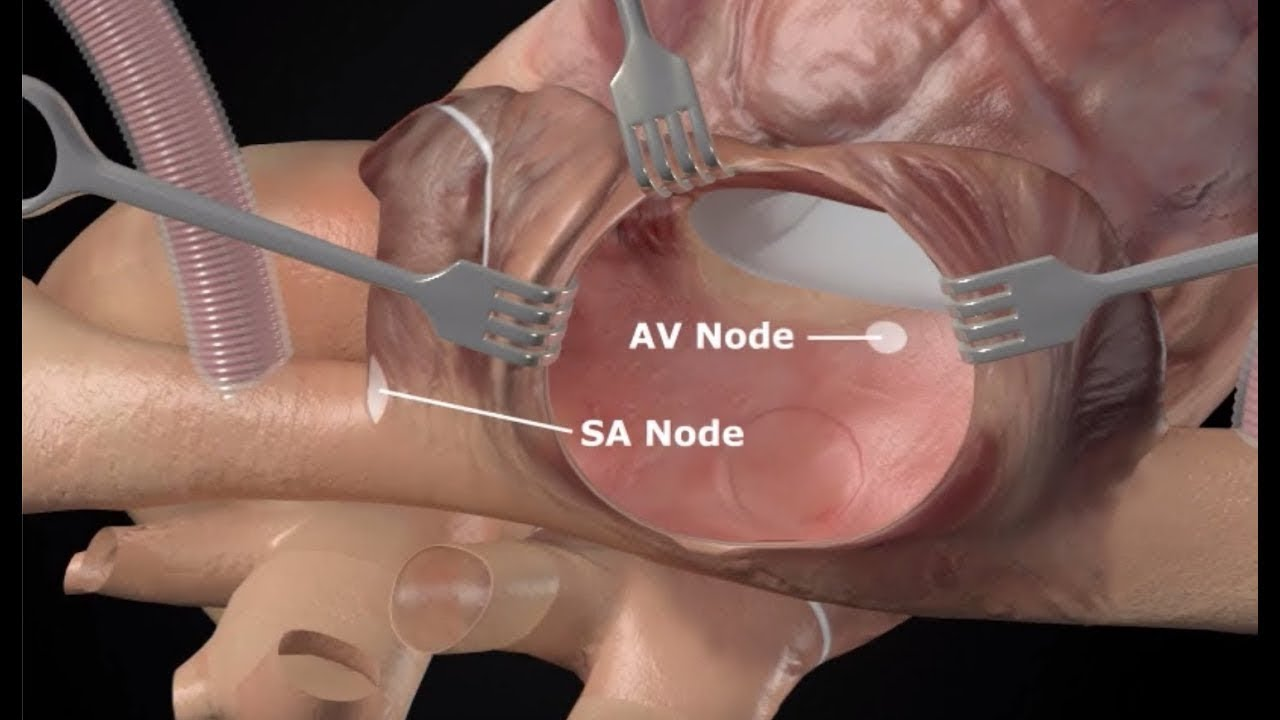 Cox-Maze IV Procedure Animation for Surgical Ablation
