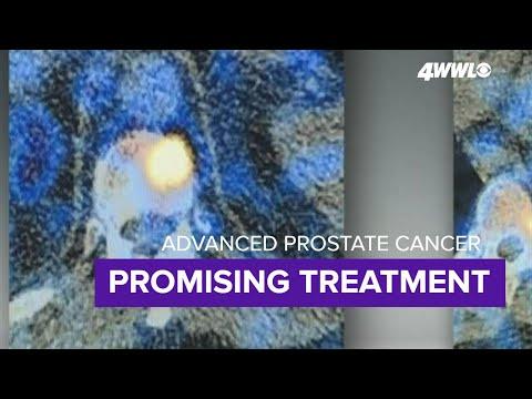 Fekete tabletták a prosztatitisből