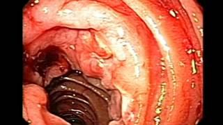 Endoscopy of Duodenal Lymphoma