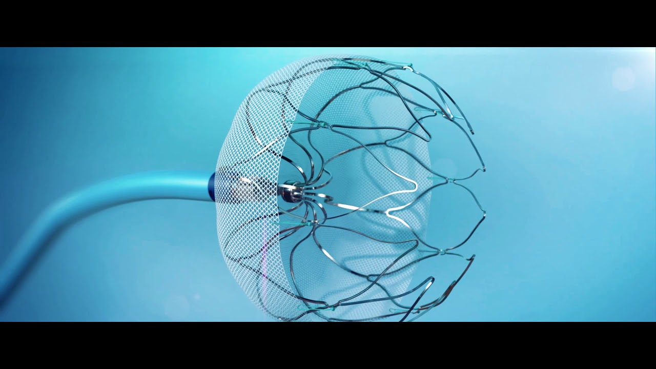 Watchman Implant Procedure