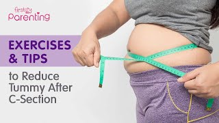 How to Reduce Tummy Fat After C-section Delivery (Easy Exercises & Tips)