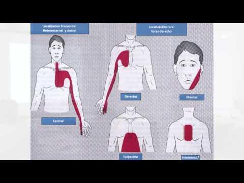 Secundaria clasificación hipertensión pulmonar