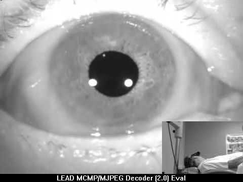 Clinica de oftalmologie uniclinică din Dusseldorf
