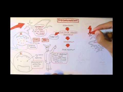 Video Neurodegenerative Disorder II - Parkinson's and Huntington's