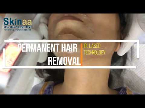 How IPL Laser Technology Removes Hairs Permanently | Skinaa Clinic, Jaipur