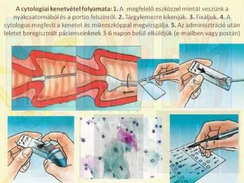 Egy vérvizsgálat prosztatarák