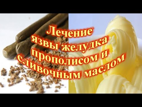 Лечение язвы желудка прополисом и сливочным маслом