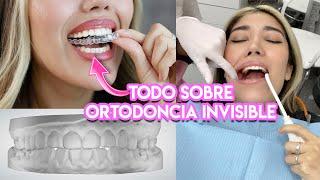 Me puse ortodoncia pero invisible :D !!! /Keepsmiling/