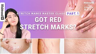 How to reduce Stretch Marks and prevent red Stretch Marks l Stretch Marks Master Class PART.1