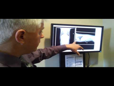 Video Pet Tips - New Digital X-Ray