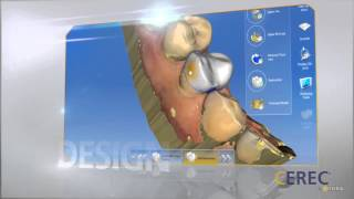 CEREC Technology: Get a New Crown In One Visit