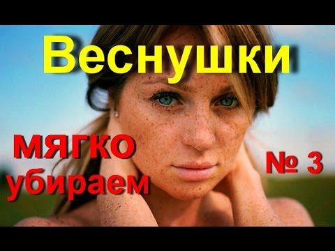 Неравномерная пигментация кожи у детей