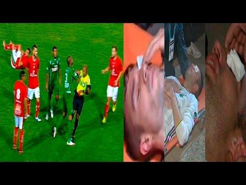 Van Persie podria perder un ojo y jugador empuja al arbitro | CrudaNews