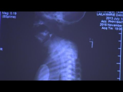 Rosenbaum trial: Doctor talks about Laila Daniel x-rays