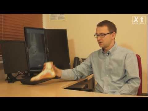 Ustawienie koślawe kolana u dorosłych