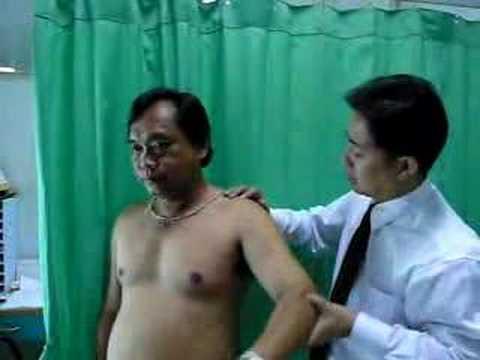 Rezultat Po Operacji Usunięcia Stawu Barkowooobojczykowego Z Powodu Zwyrodnienia