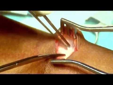 Lopération laser de la varicosité de la conséquence