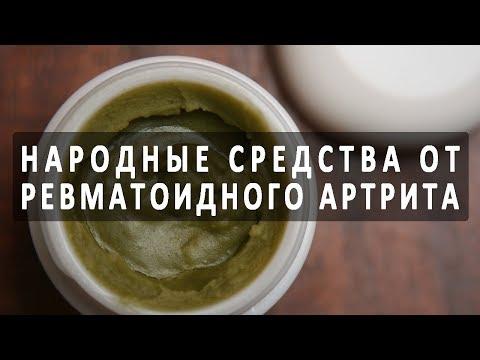 Санатории чехии лечение артроза