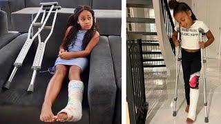 The Girl with a BROKEN LEG, the Full Movie   FamousTubeFamily
