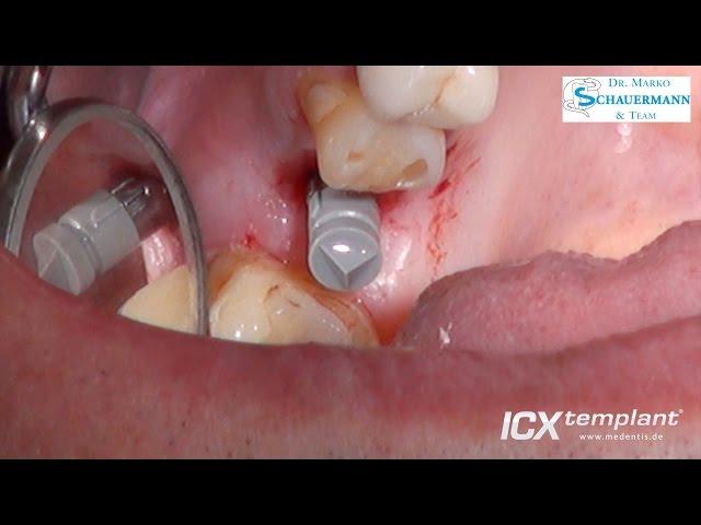Einzelzahnimplantation im Oberkiefer mit ICX-MAGELLAN/ ICX-SafetyGuide System