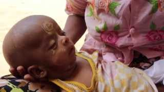 preview picture of video 'When Medical Care Disappears - The Rohingya Story'