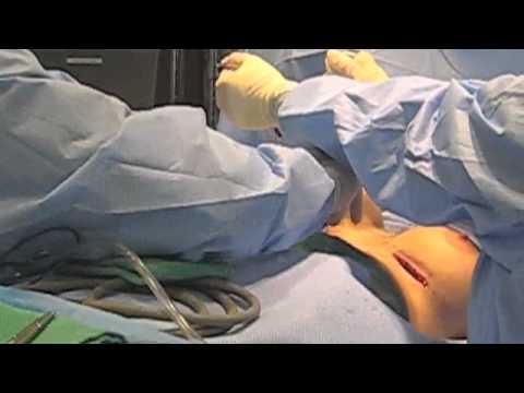 Dagdagan ang laki ng suso nang walang surgery