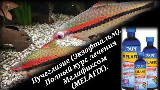 Пучеглазие (Экзофтальм). Полный курс лечения Мелафиксом (MelaFix).