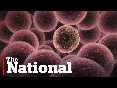 Come portare parassiti di un catrame di organismo