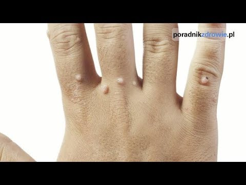 Ustawienie koślawe kolana u dzieci masaż wideo