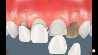 Video Dental veneers