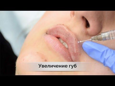 Увеличение губ или контурная пластика | филлеры  juvederm в Самаре   влог