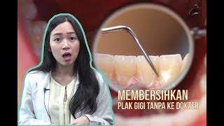 Cara Membersihkan Karang Gigi Sendiri Tanpa Perlu Ke Dokter ฟร