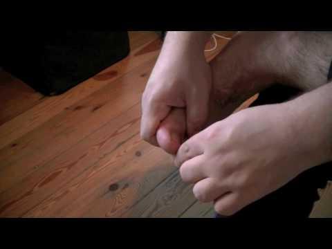 Come trattare ununghia su una gamba se è scoppiato