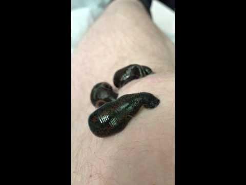 Prostata-Erkrankungen Fibrose