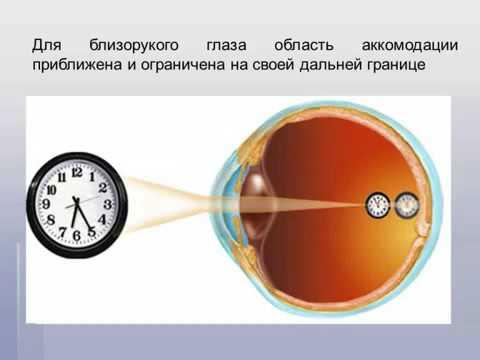 Коррекция упало зрение