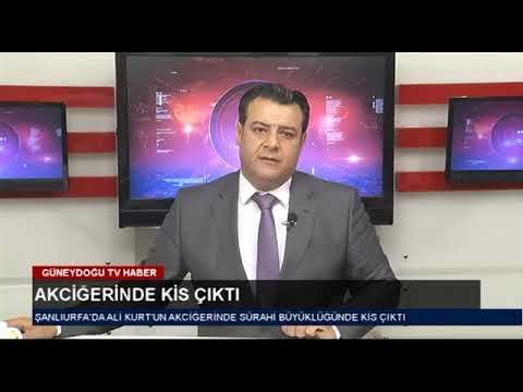 OP Dr Ahmet Mehmet Doblan Göğüs cerrahisi uzmanı Balıklıgöl devlet hastanesi Şanlıurfa