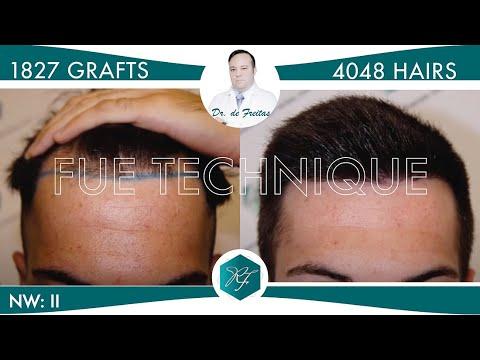 Hair Transplant in Los Angeles - Best FUE Hair Restoration in Los Angeles