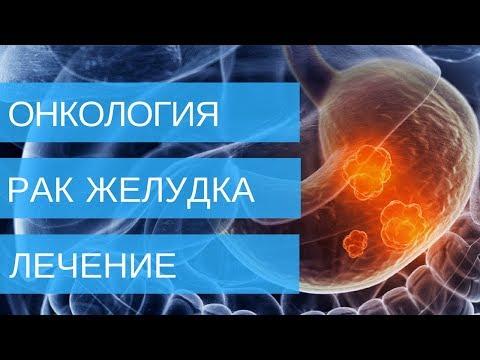 РАК ЖЕЛУДКА лечение 1,2,3,4 стадии