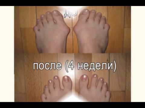 Шишки между пальцами ног что это