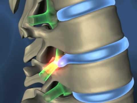 Schmerzen zwischen den Schulterblättern und den unteren Rücken