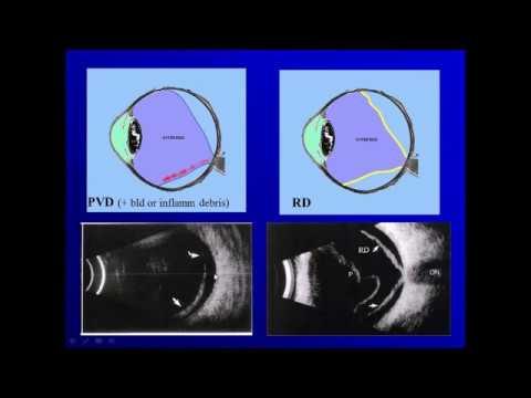 Cursă de oftalmologie