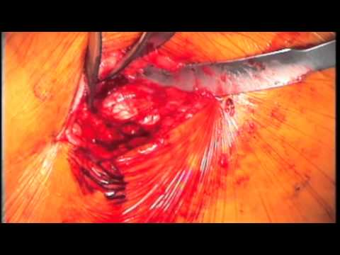 Total Hip Replacement - Anterior Approach - Part 1