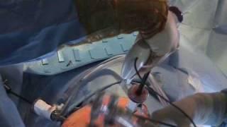 Living Donor Kidney Transplant Surgery