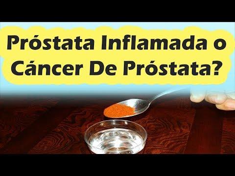 Lo que puede esperar del cáncer de próstata
